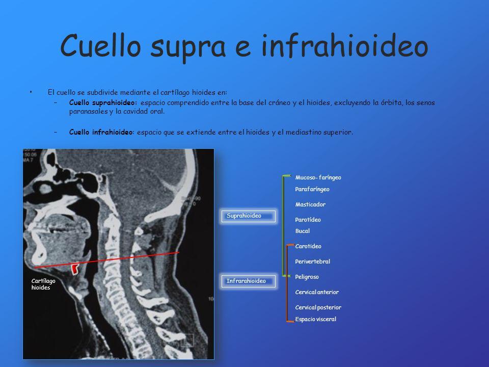 Cuello supra e infrahioideo