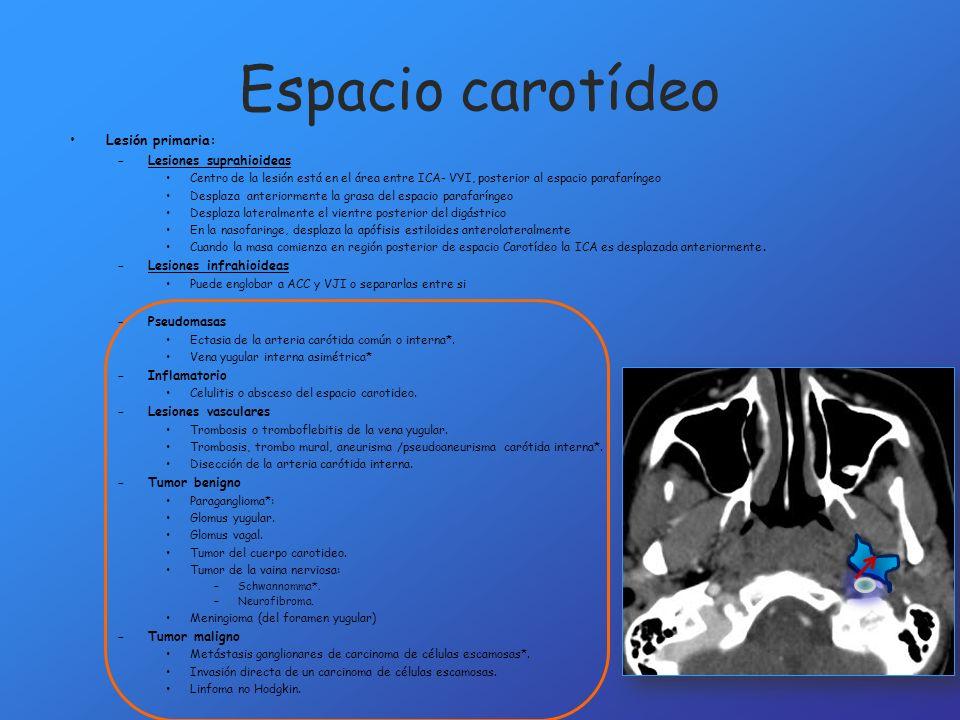 Espacio carotídeo Lesión primaria: Lesiones suprahioideas