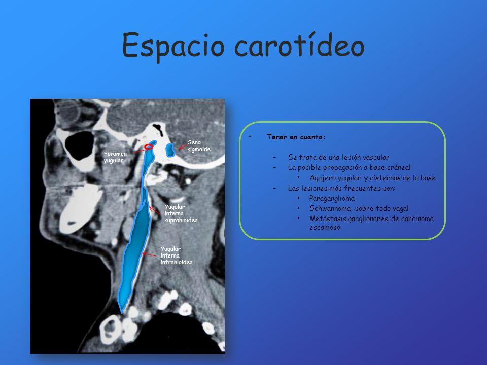 Espacio carotídeo Tener en cuenta: Se trata de una lesión vascular