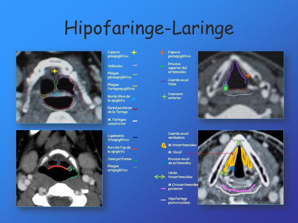 Hipofaringe-Laringe Espacio preepiglótico Espacio paraepiglótico