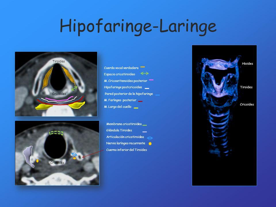 Hipofaringe-Laringe Tiroides Hioides Cuerda vocal verdadera