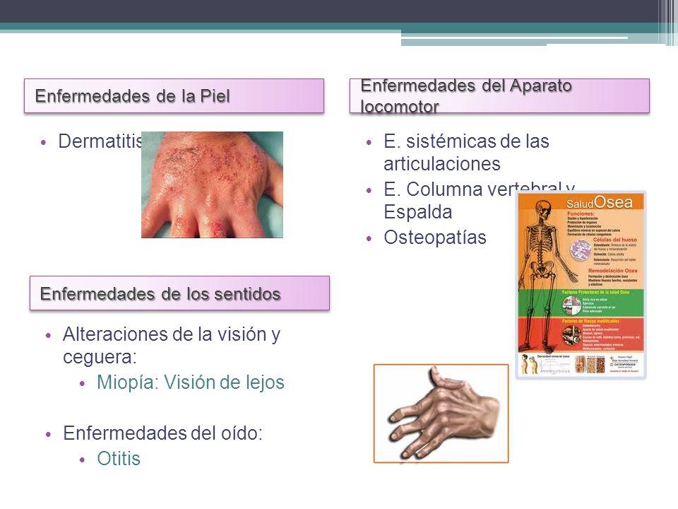 E. sistémicas de las articulaciones E. Columna vertebral y Espalda