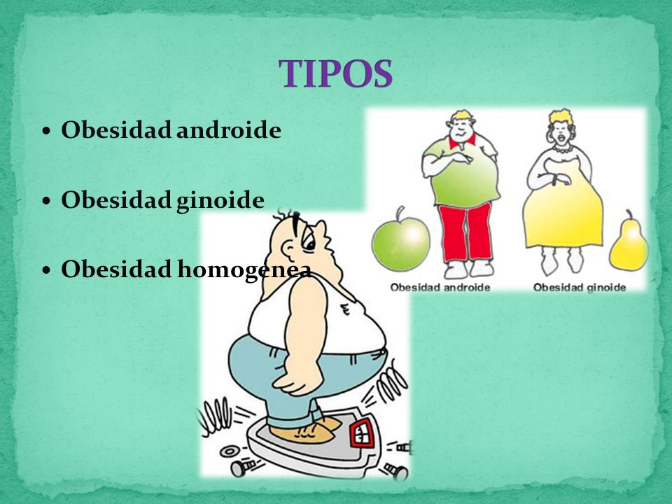 TIPOS Obesidad androide Obesidad ginoide Obesidad homogénea