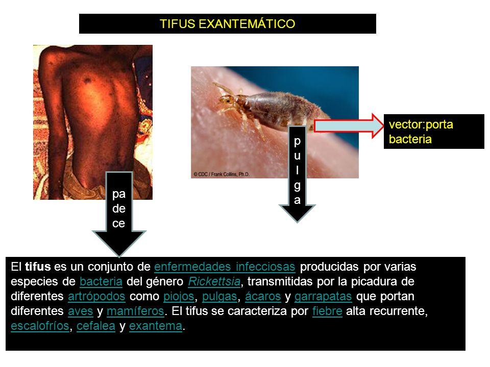 TIFUS EXANTEMÁTICO vector:porta bacteria. pulga. padece.