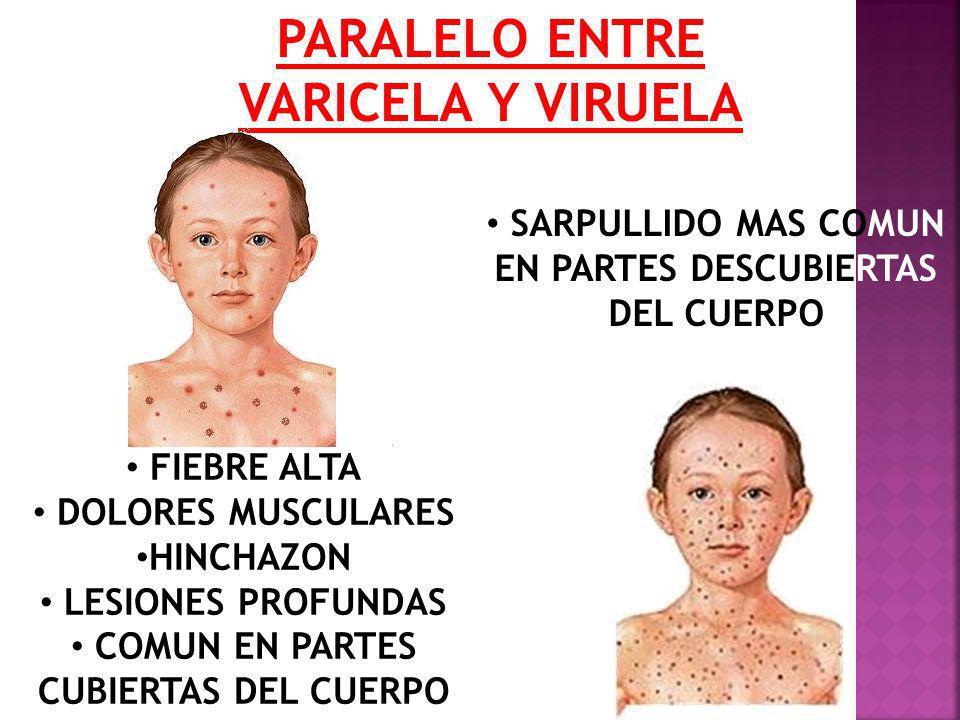 PARALELO ENTRE VARICELA Y VIRUELA