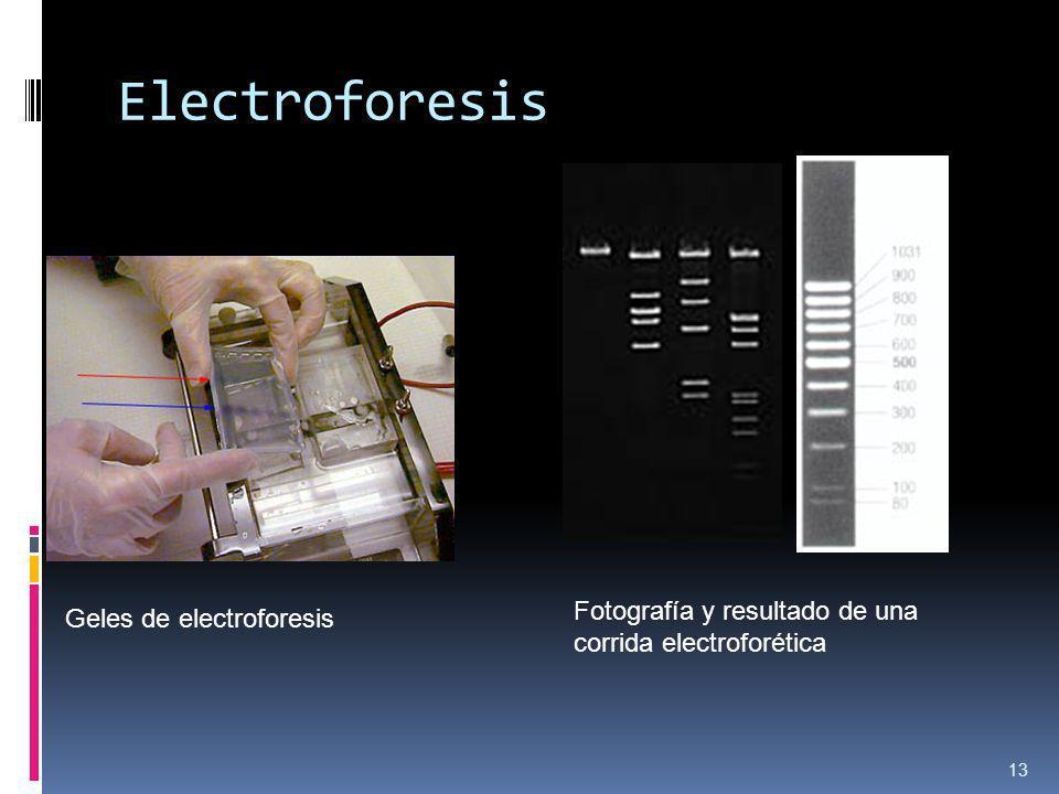 Electroforesis Fotografía y resultado de una corrida electroforética