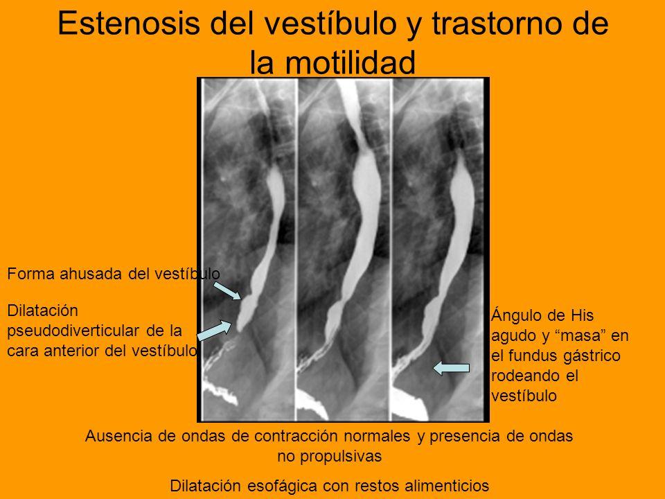 Estenosis del vestíbulo y trastorno de la motilidad