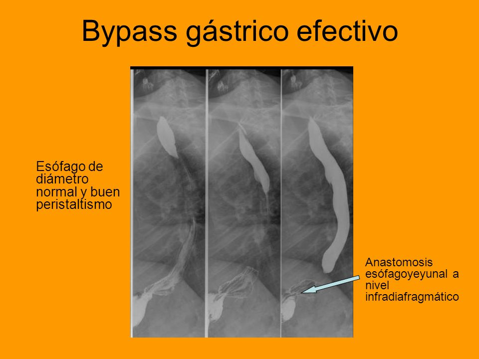 Bypass gástrico efectivo