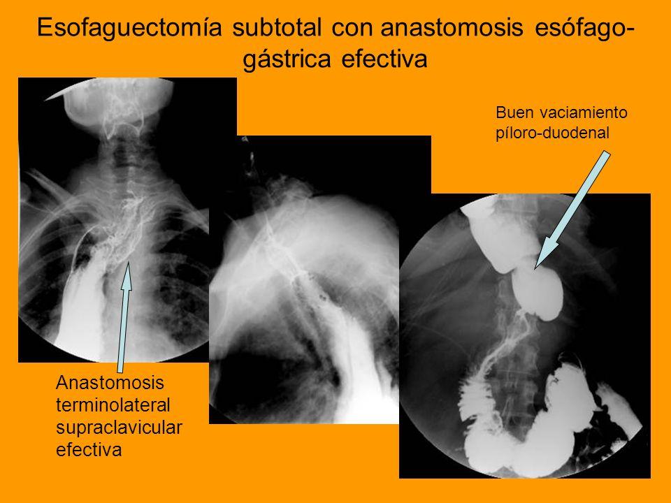 Esofaguectomía subtotal con anastomosis esófago-gástrica efectiva