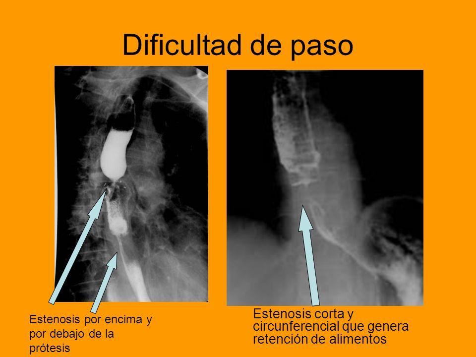 Dificultad de paso Estenosis corta y circunferencial que genera retención de alimentos.