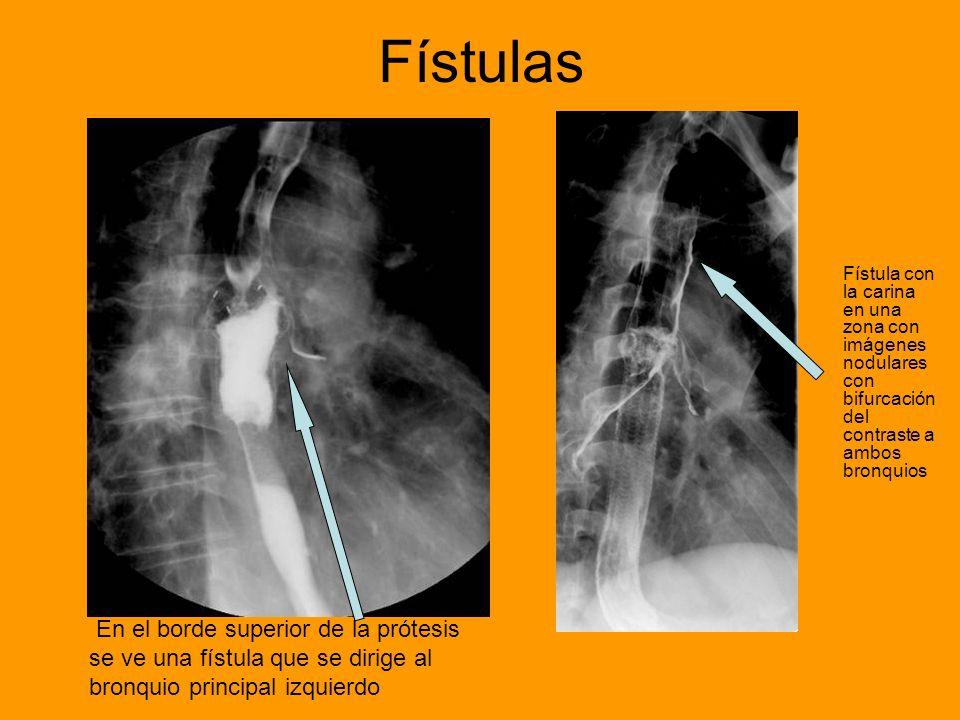 Fístulas Fístula con la carina en una zona con imágenes nodulares con bifurcación del contraste a ambos bronquios.