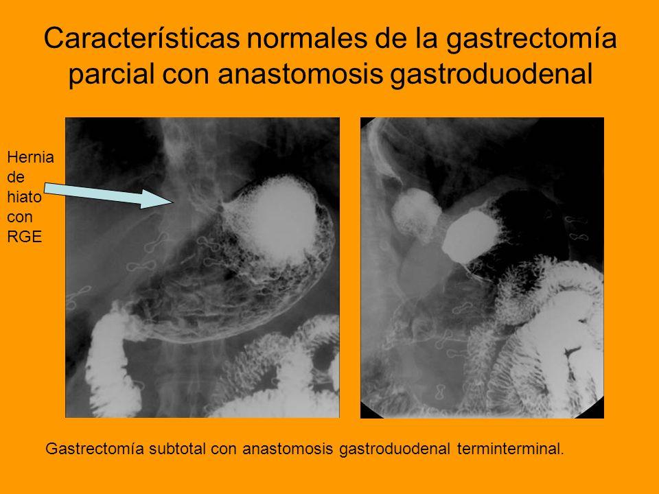 Características normales de la gastrectomía parcial con anastomosis gastroduodenal