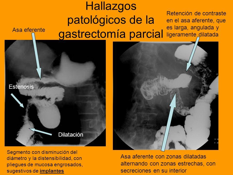 Hallazgos patológicos de la gastrectomía parcial