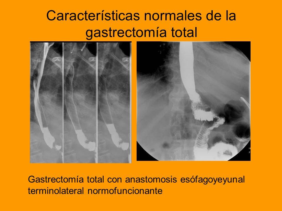 Características normales de la gastrectomía total