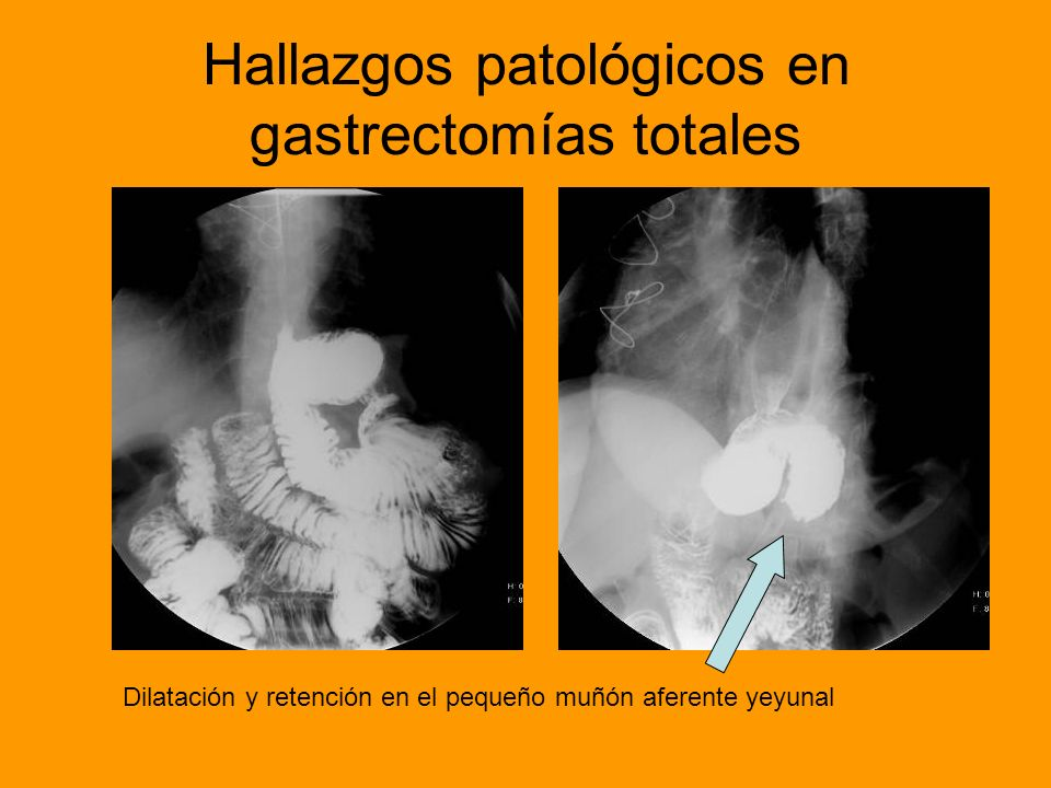Hallazgos patológicos en gastrectomías totales