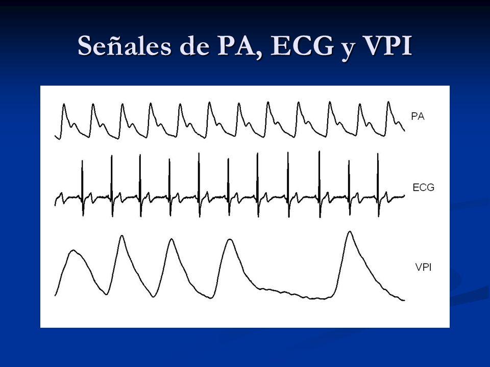 Señales de PA, ECG y VPI