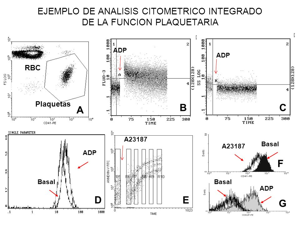 EJEMPLO DE ANALISIS CITOMETRICO INTEGRADO DE LA FUNCION PLAQUETARIA