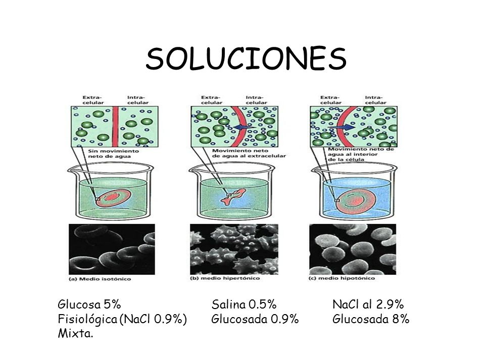 SOLUCIONES Glucosa 5% Fisiológica (NaCl 0.9%) Mixta. Salina 0.5%