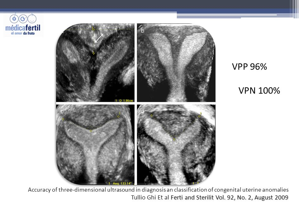 VPP 96% VPN 100% Accuracy of three-dimensional ultrasound in diagnosis an classification of congenital uterine anomalies.
