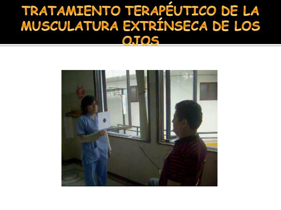 TRATAMIENTO TERAPÉUTICO DE LA MUSCULATURA EXTRÍNSECA DE LOS OJOS