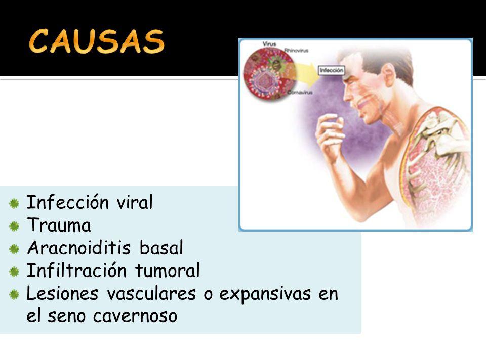 CAUSAS Infección viral Trauma Aracnoiditis basal Infiltración tumoral