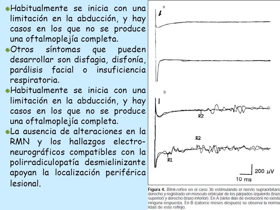 Habitualmente se inicia con una limitación en la abducción, y hay casos en los que no se produce una oftalmoplejía completa.