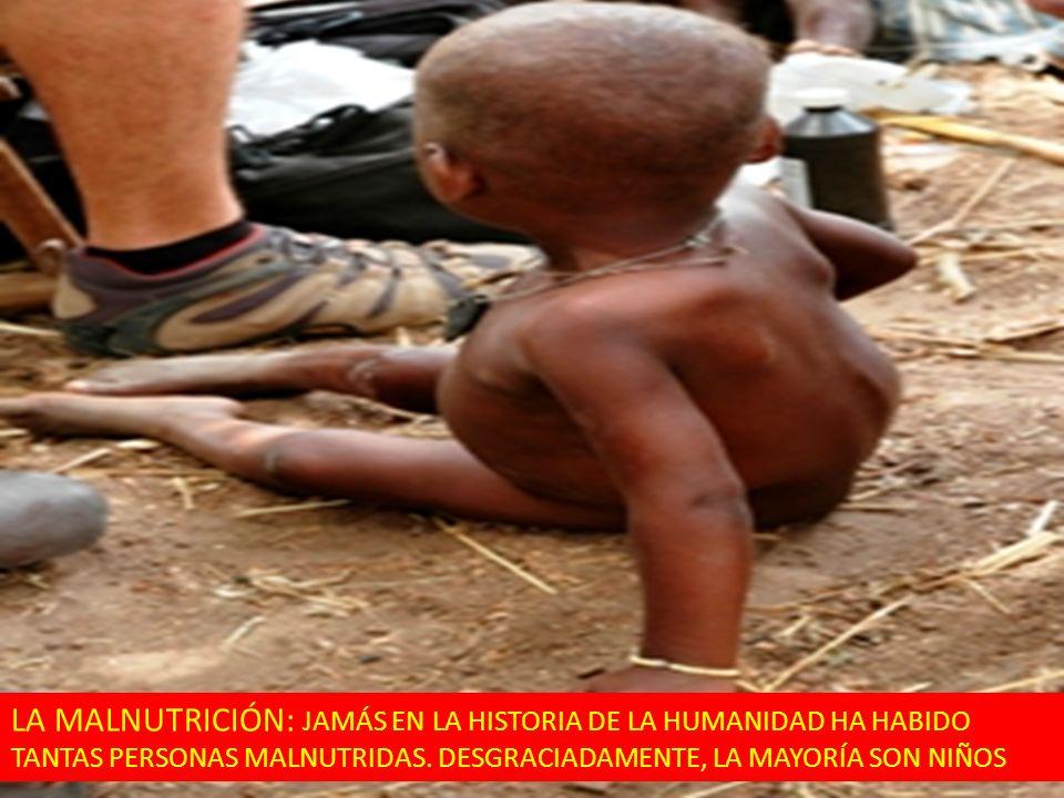 LA MALNUTRICIÓN: JAMÁS EN LA HISTORIA DE LA HUMANIDAD HA HABIDO TANTAS PERSONAS MALNUTRIDAS.