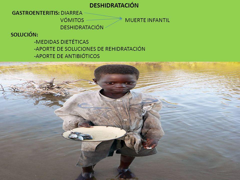 DESHIDRATACIÓN GASTROENTERITIS: DIARREA VÓMITOS MUERTE INFANTIL