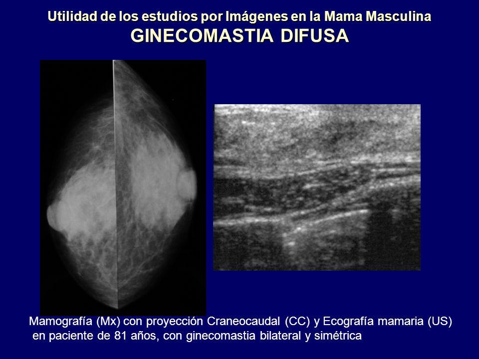 Utilidad de los estudios por Imágenes en la Mama Masculina GINECOMASTIA DIFUSA