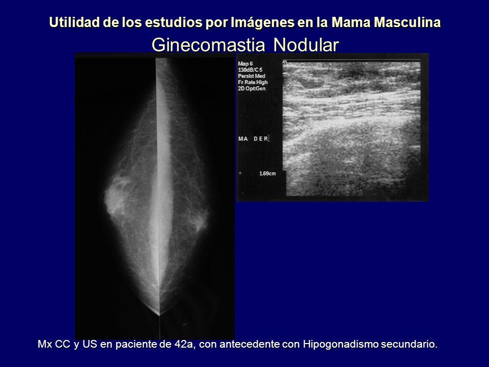 Utilidad de los estudios por Imágenes en la Mama Masculina Ginecomastia Nodular