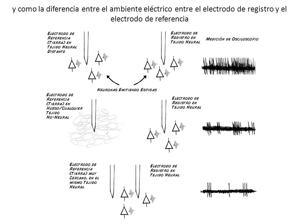 y como la diferencia entre el ambiente eléctrico entre el electrodo de registro y el electrodo de referencia