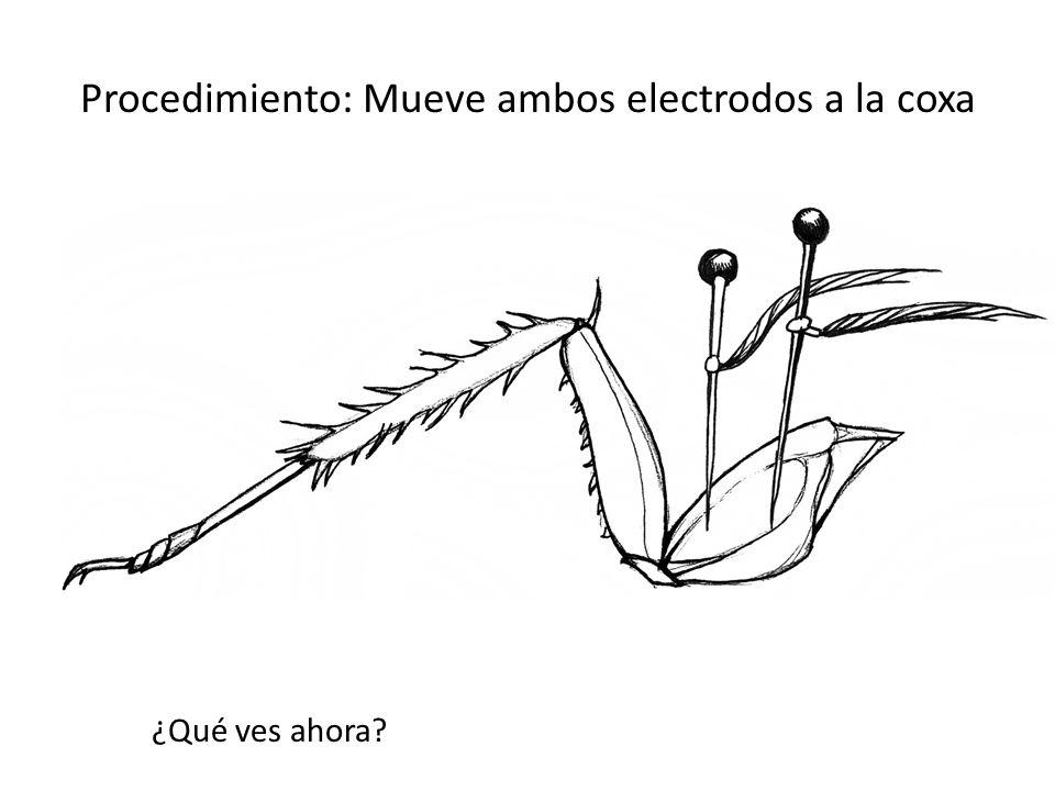 Procedimiento: Mueve ambos electrodos a la coxa