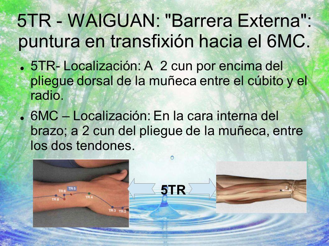 5TR - WAIGUAN: Barrera Externa : puntura en transfixión hacia el 6MC.