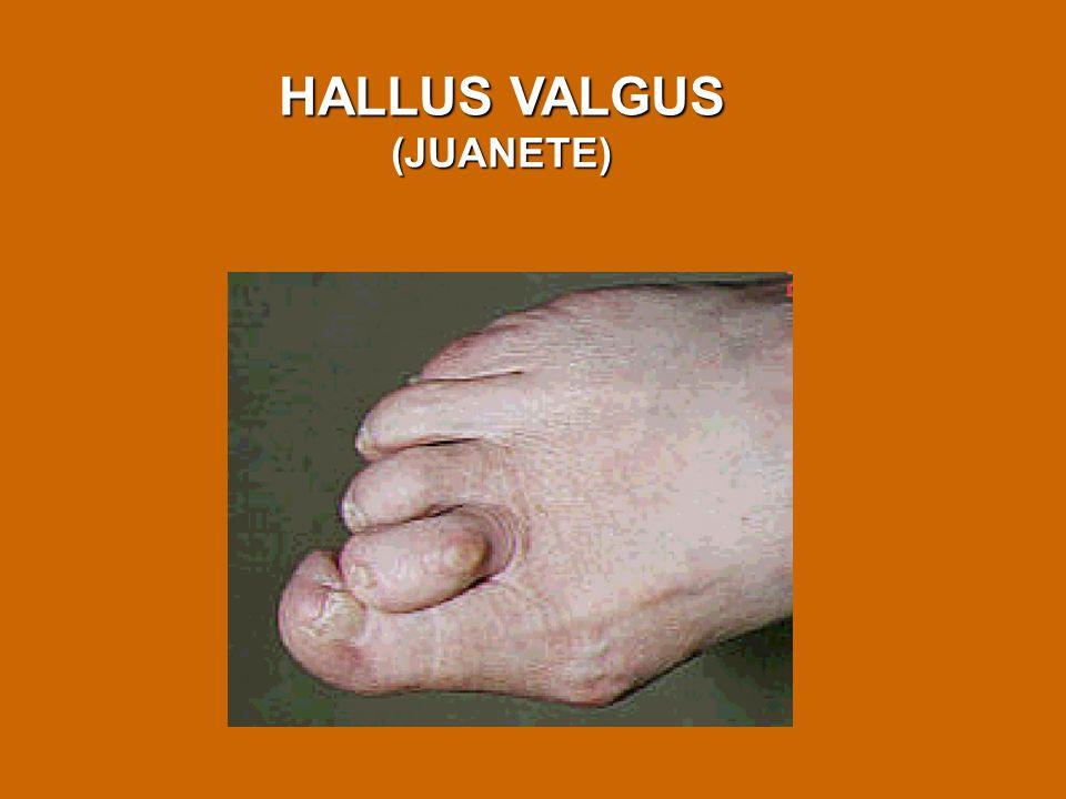 HALLUS VALGUS (JUANETE)