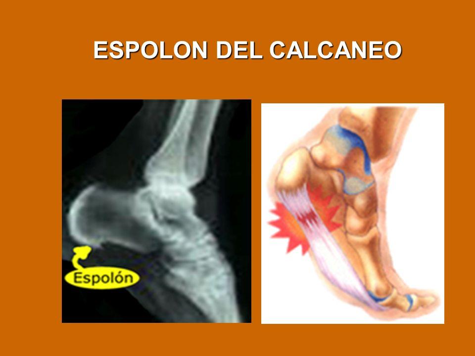 ESPOLON DEL CALCANEO