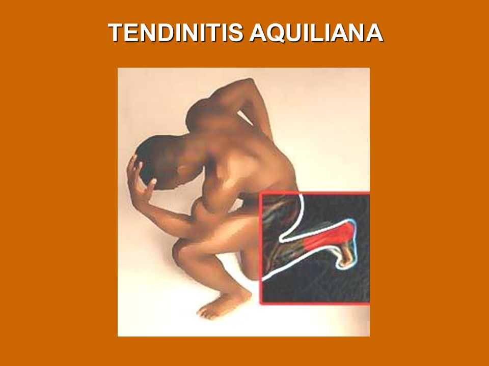 TENDINITIS AQUILIANA