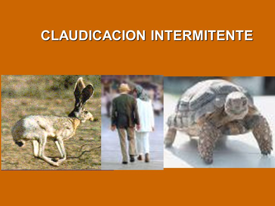 CLAUDICACION INTERMITENTE