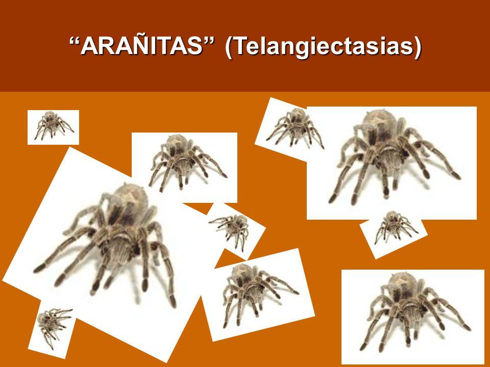 ARAÑITAS (Telangiectasias)