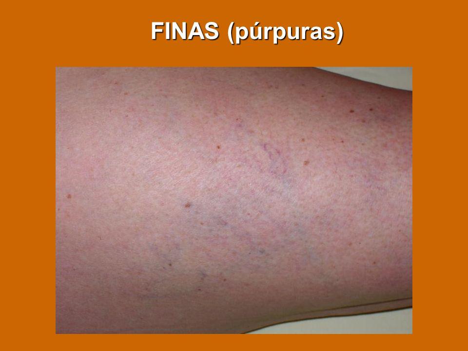 FINAS (púrpuras)