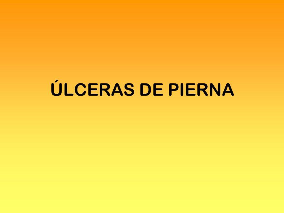 ÚLCERAS DE PIERNA