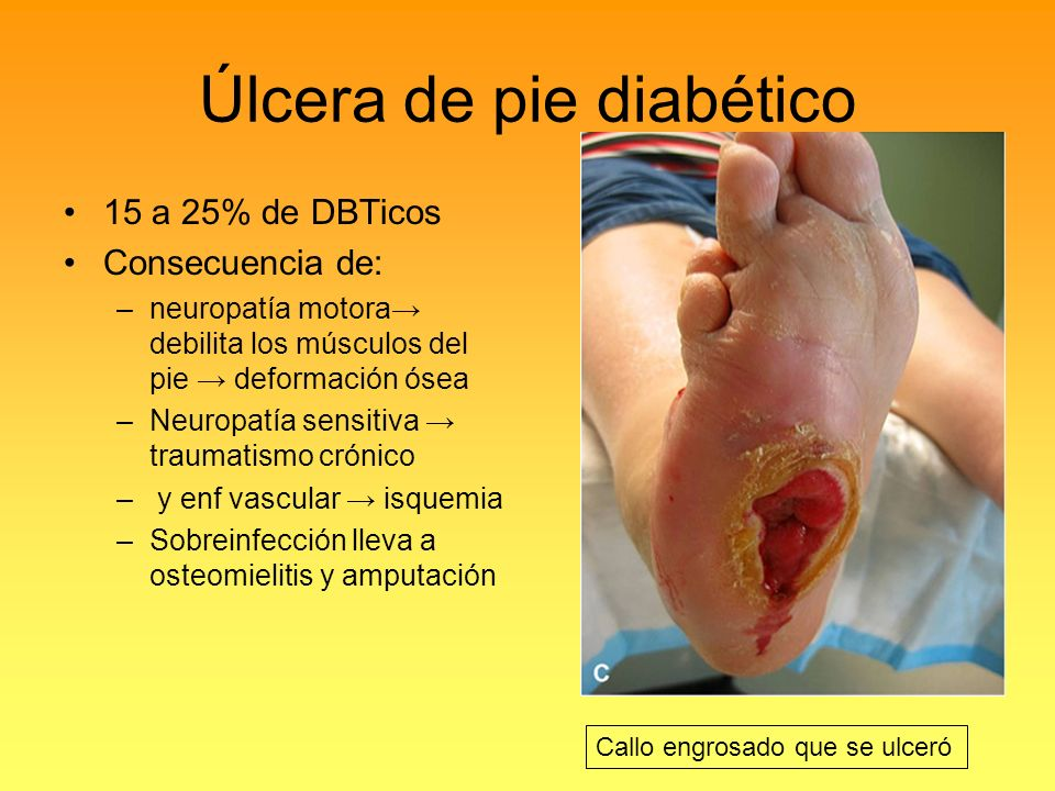 Úlcera de pie diabético