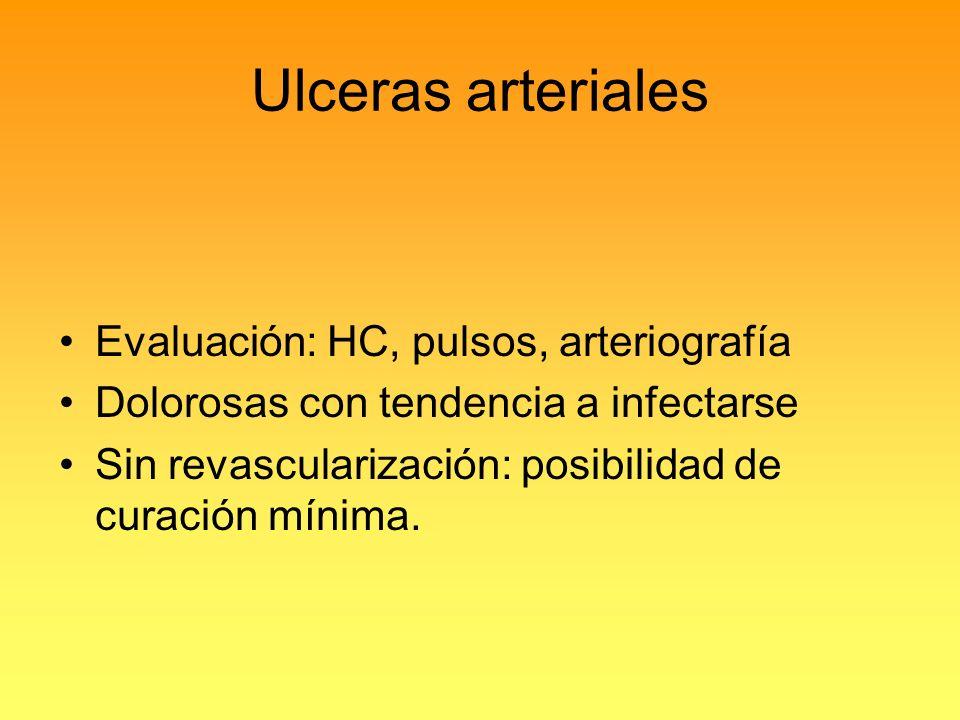 Ulceras arteriales Evaluación: HC, pulsos, arteriografía