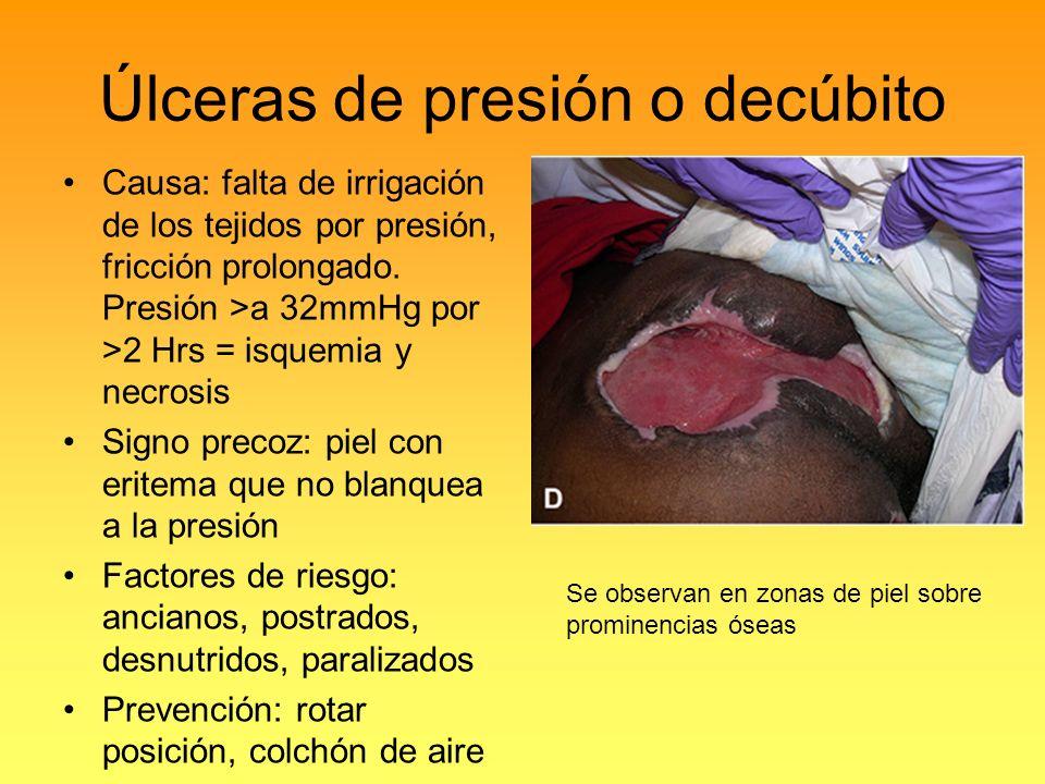 Úlceras de presión o decúbito