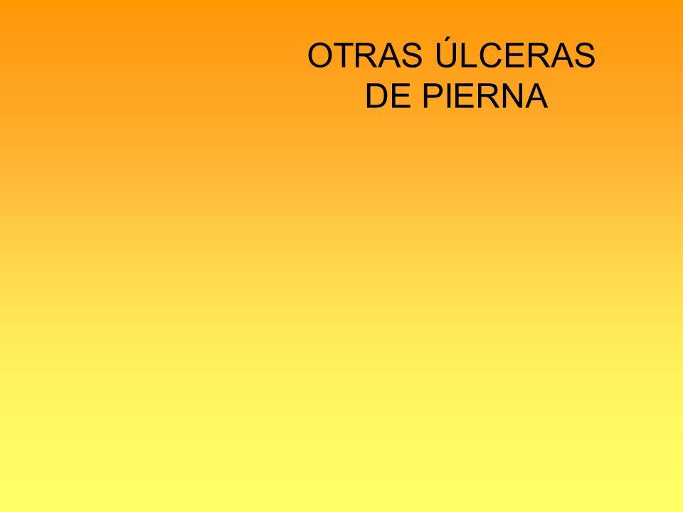 OTRAS ÚLCERAS DE PIERNA