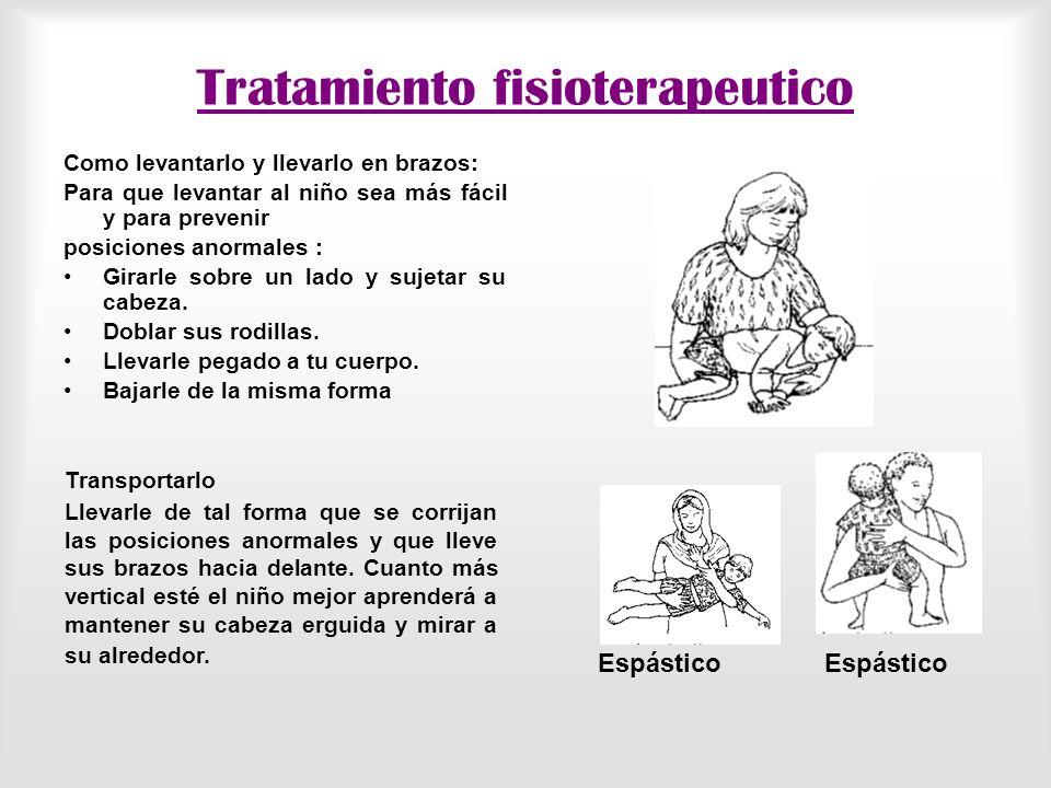 Tratamiento fisioterapeutico