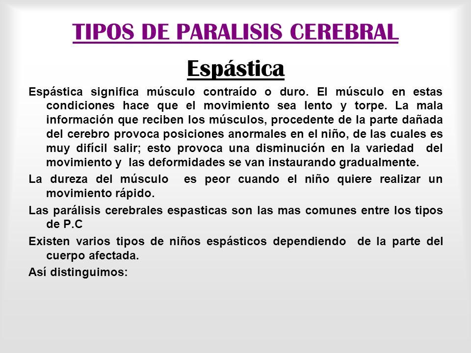 TIPOS DE PARALISIS CEREBRAL