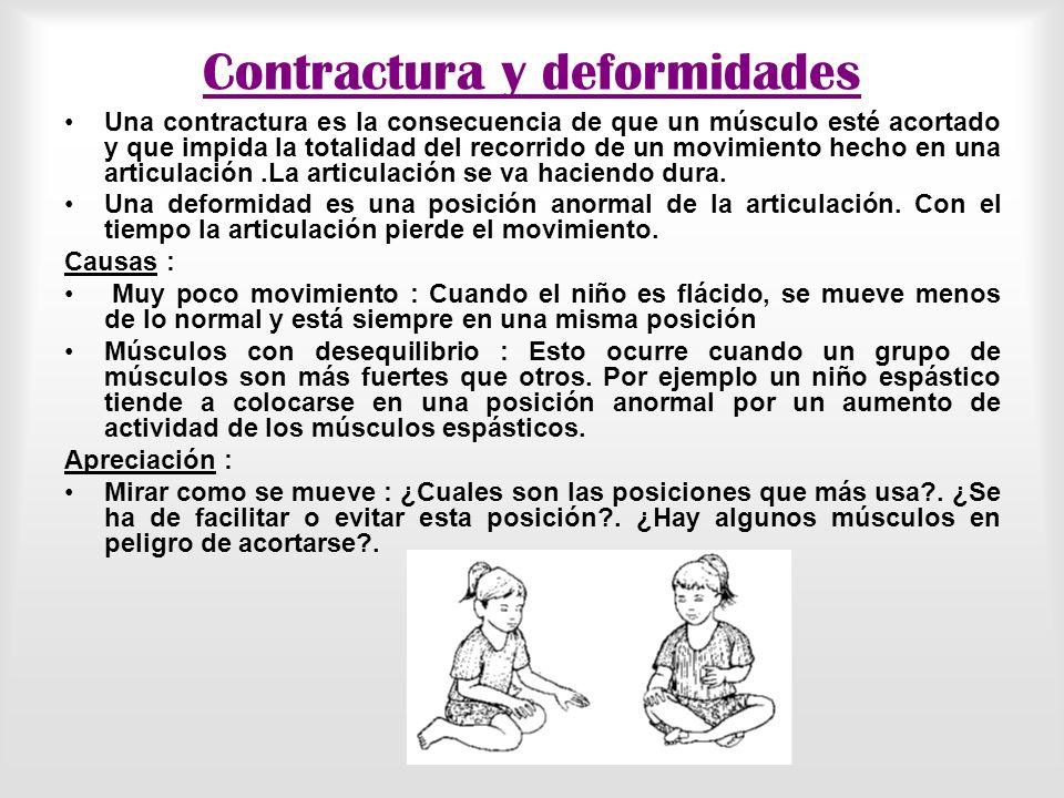 Contractura y deformidades