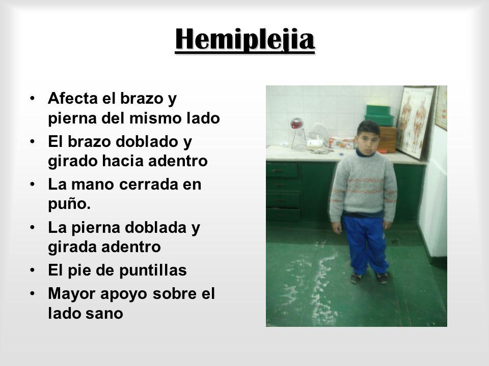 Hemiplejia Afecta el brazo y pierna del mismo lado