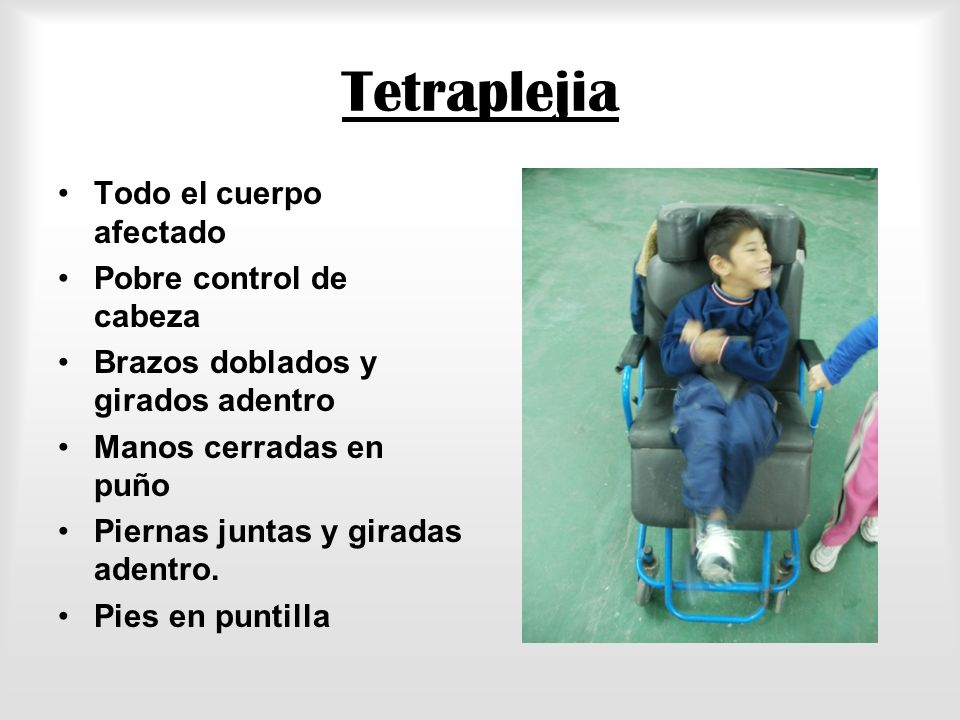 Tetraplejia Todo el cuerpo afectado Pobre control de cabeza