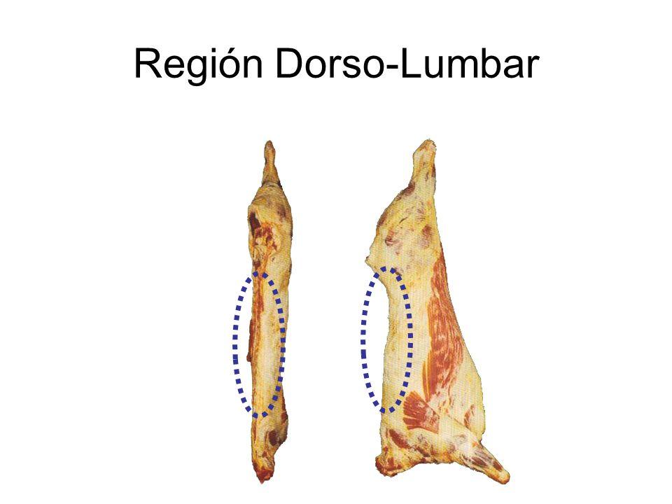 Región Dorso-Lumbar